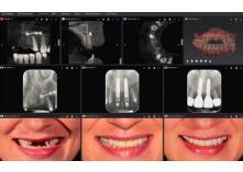 Røntgensoftware - let at integrere på klinikken